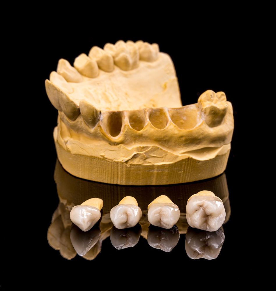Town & County Dental Care Ceramic dental implants