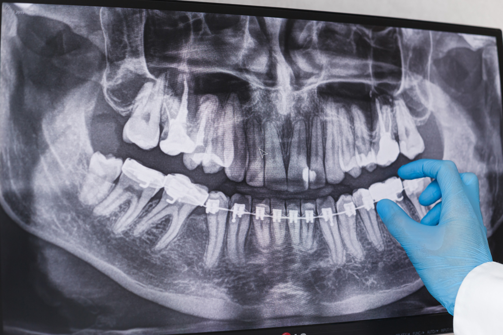 Town & County Dental Care Doctor points to braces in dental x-ray