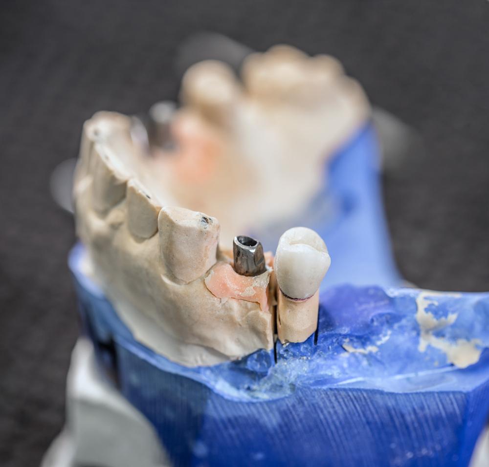 Town & County Dental Care False teeth